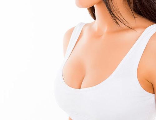 Dudas frecuentes sobre la mamoplastia