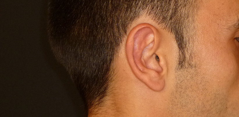 Implante Earfold ¡Novedoso tratamiento de otoplastia sin cirugía!