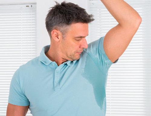 Tratamiento de la hiperhidrosis ¡Despídase del exceso de sudoración!
