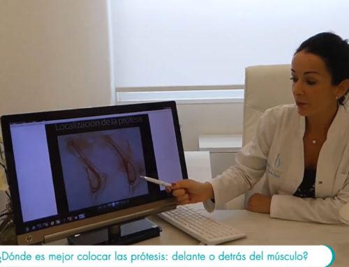 Prótesis mamarias ¿delante o detrás del músculo?