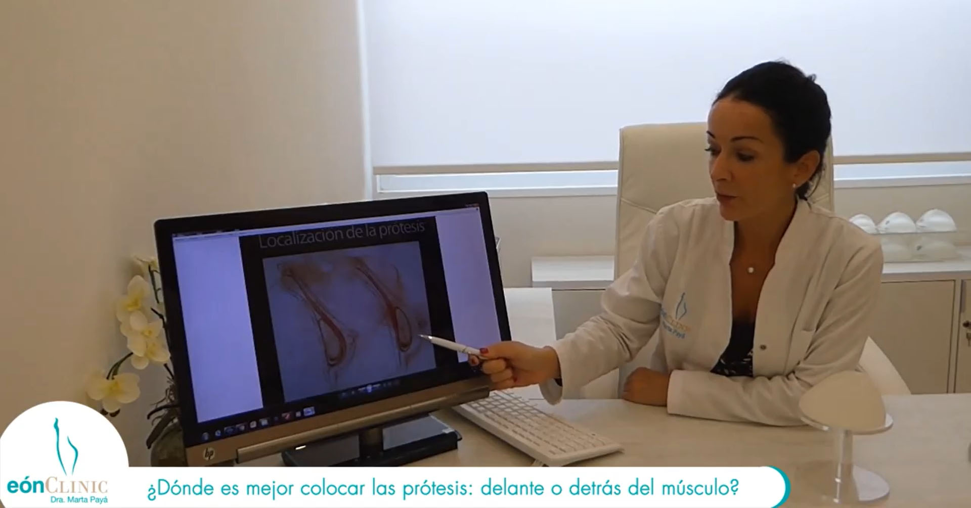 prótesis mamarias delante o detrás del músculo