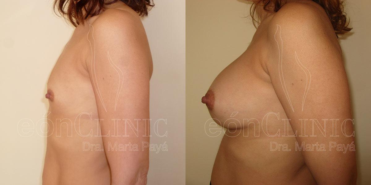 Mamoplastia de aumento con prótesis redondas de 320cc
