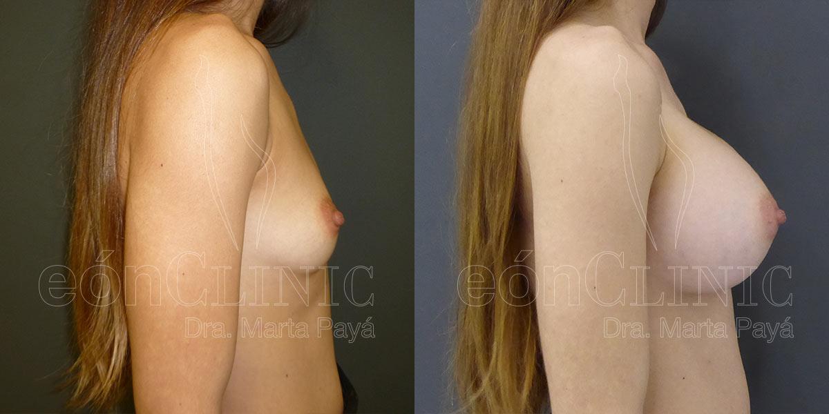 Mamoplastia de aumento con prótesis redondas de 450cc