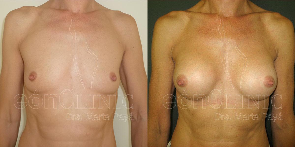 Mamoplastia de aumento vía submamaria con prótesis anatómicas 250cc