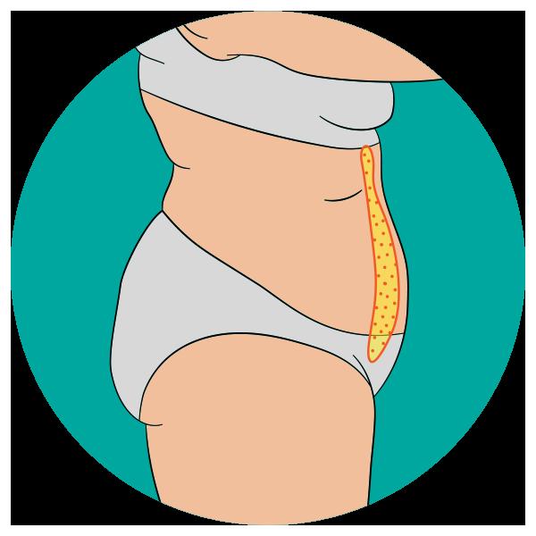 Abdominoplastia normal con plicatura de la musculatura abdominal