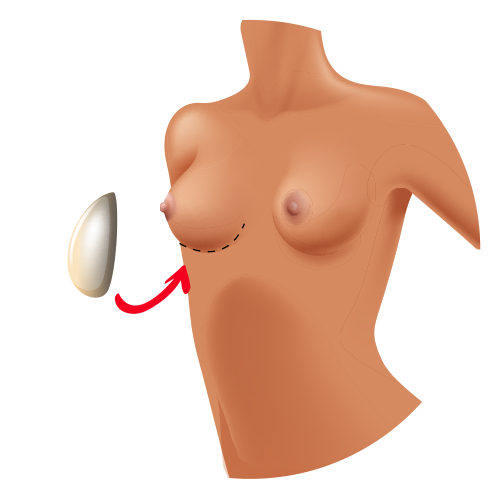 reconstrucción de mama técnicas