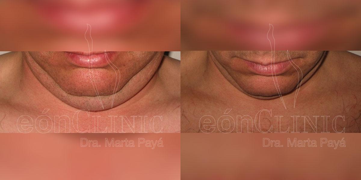Liposucción EónClinic Doctora Marta Payá Mallorca