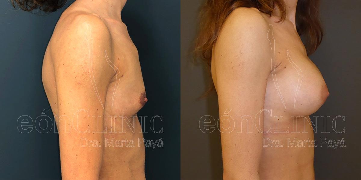 Mamoplastia de aumento con prótesis anatómicas de 230cc