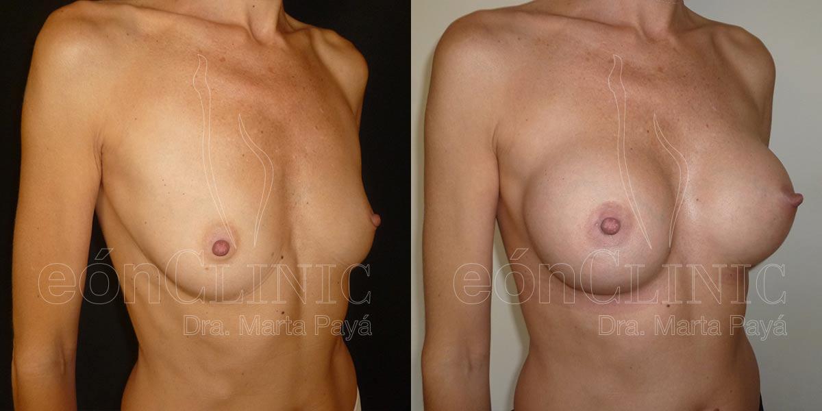 Mamoplastia de aumento con prótesis anatómicas de 280cc