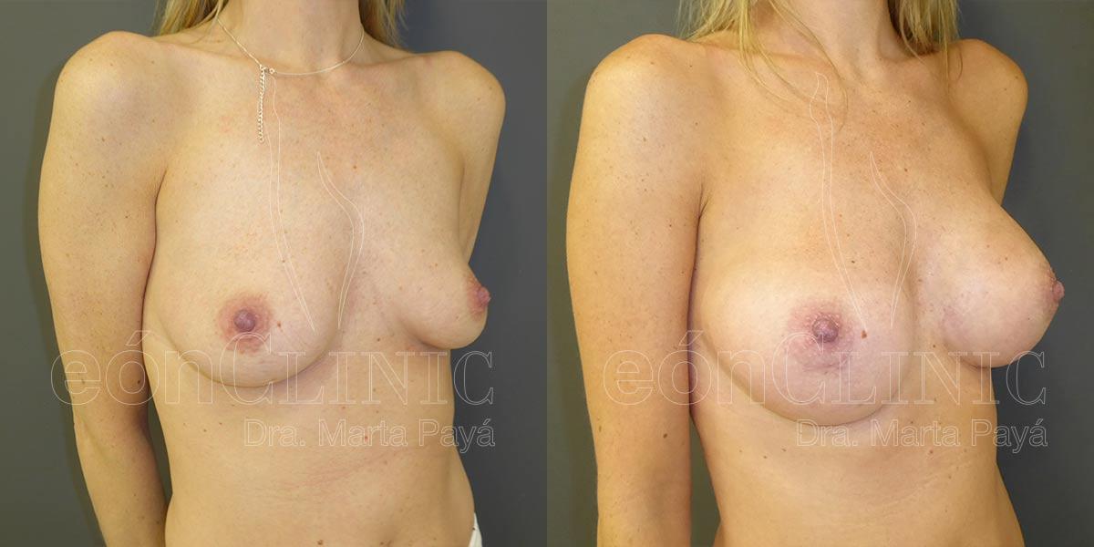 Mamoplastia de aumento con prótesis anatómicas de 295cc por vía periareolar