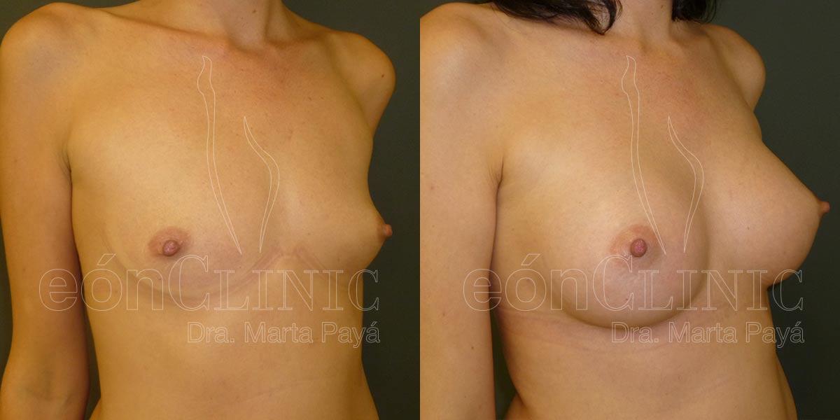 Mamoplastia de aumento con prótesis anatómicas de 300cc