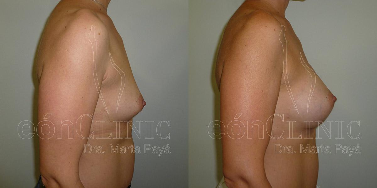 Mamoplastia de aumento con prótesis redondas de 290cc