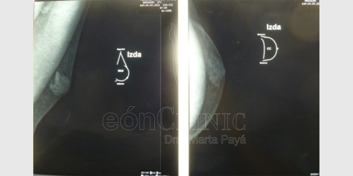 Ginecomastia EónClinic Mallorca Doctora Marta Payá